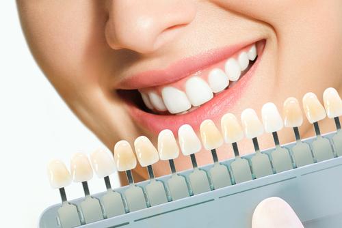 Cosmetic dental treatments